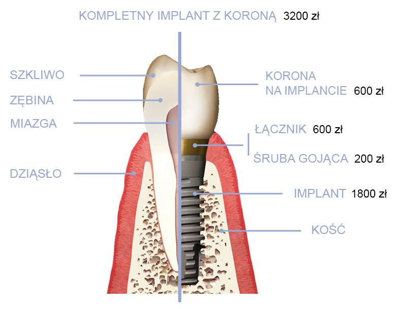 Implant cena - CSE Aquarius Bełchatów