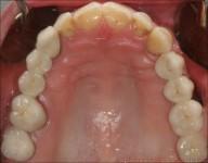 Implanty - CSE Aquarius - Dentysta Bełchatów