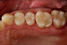stomatologia zachowawcza CSEAquarius