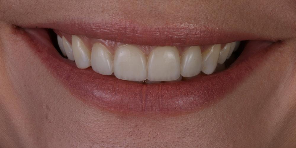 , Efekty leczenia, Dobry dentysta, stomatolog Aquarius Bełchatów