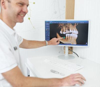 aquarius 1121 - Kompleksowe leczenie implantologiczne – ile kosztują implanty całej szczęki?